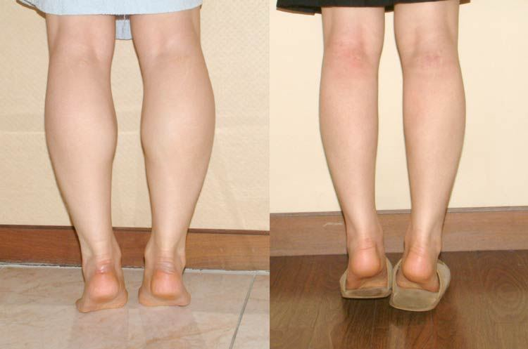 how to lose leg fat woman